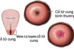 hình ảnh viêm lộ tuyến cổ tử cung ở 3 cấp độ 1