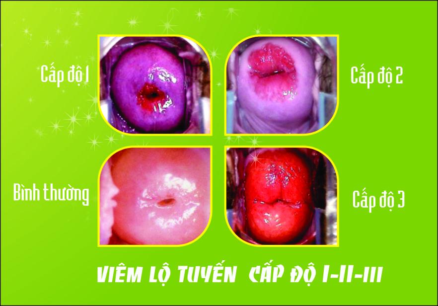hình ảnh viêm lộ tuyến cổ tử cung ở 3 cấp độ 2