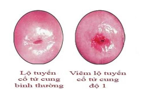 hình ảnh viêm lộ tuyến cổ tử cung độ 1