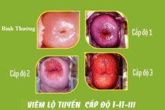 Phác đồ điều trị viêm lộ tuyến cổ tử cung độ 1, 2, 3 1
