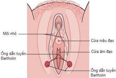 Viêm tuyến Bartholin là gì? Nguyên nhân, triệu chứng viêm tuyến Bartholin 1