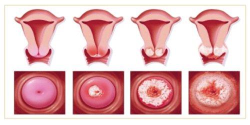 Điều trị viêm lộ tuyến cổ tử cung diện rộng 1