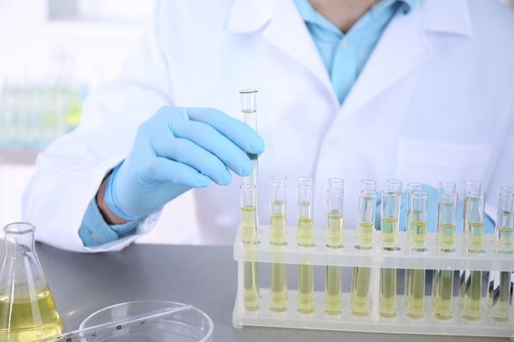 Đang có kinh xét nghiệm máu với nước tiểu được không 2