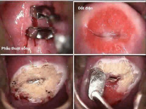 Sau khi đốt viêm lộ tuyến cổ tử cung bị ra máu có sao không ? 1