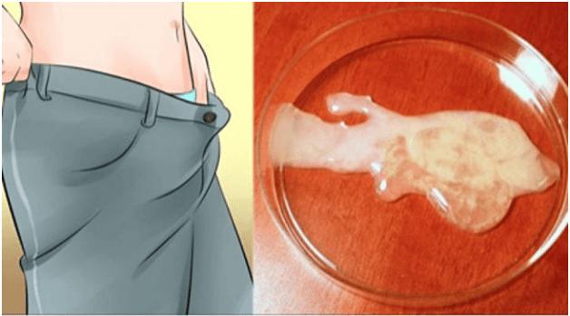 Tinh trùng chết có con được không 1