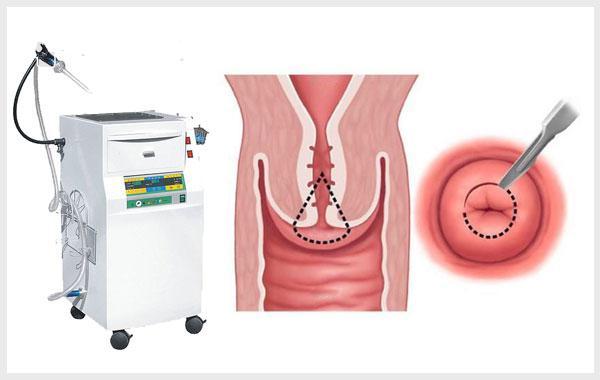 Top 3 phương pháp chữa viêm lộ tuyến cổ tử cung hiệu quả 4