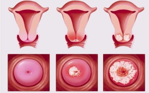 Viêm lộ tuyến cổ tử cung 1cm, 2cm là nặng hay nhẹ 1