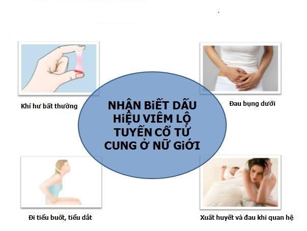 viêm lộ tuyến cổ tử cung là bệnh gì