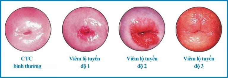 viêm lộ tuyến cổ tử cung có mấy cấp độ