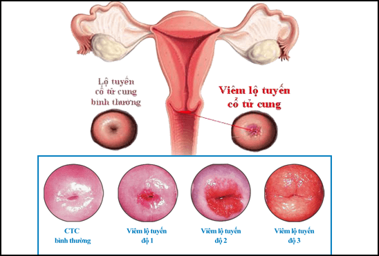 địa chỉ chữa viêm lộ tuyến cổ tử cung