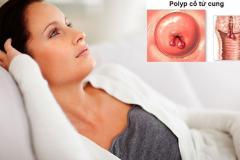 Polyp cổ tử cung và những điều cần biết 2
