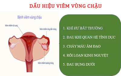 Bệnh viêm vùng chậu ở nữ giới và những điều cần biết 2