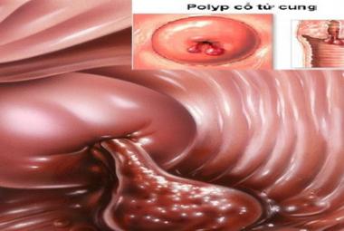 hình ảnh polyp cổ tử cung phát triển quá mức