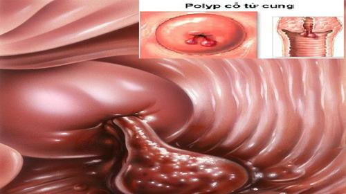 những hình ảnh polyp cổ tử cung 1