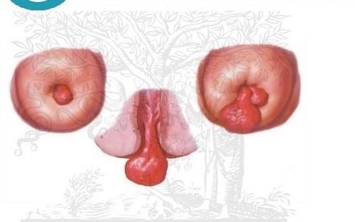 những hình ảnh polyp cổ tử cung 4