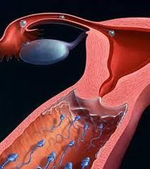 những hình ảnh polyp cổ tử cung 5