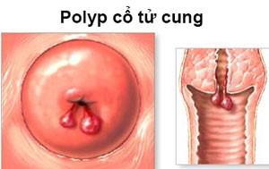 những hình ảnh polyp cổ tử cung 6